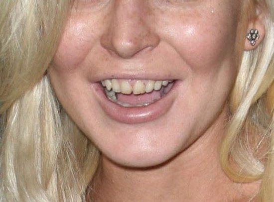 накладные зубы универсальные