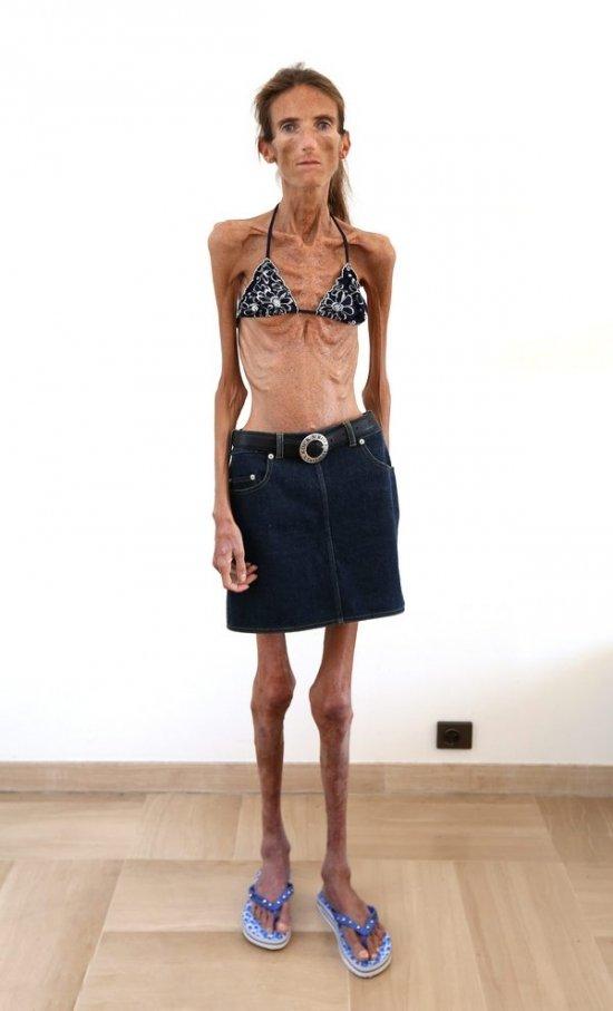 самая худая девушка в мире фото 25 кг