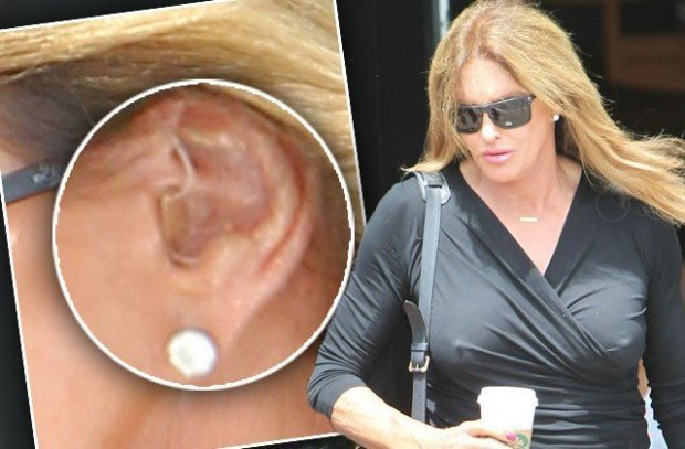 caitlyn-jenner-hearing-aid-photos-1