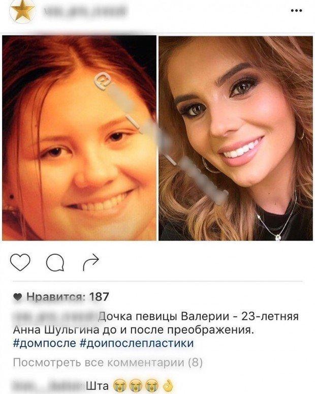 Анна Шульгина в ярости из-за подозрений в использовании «пластики»