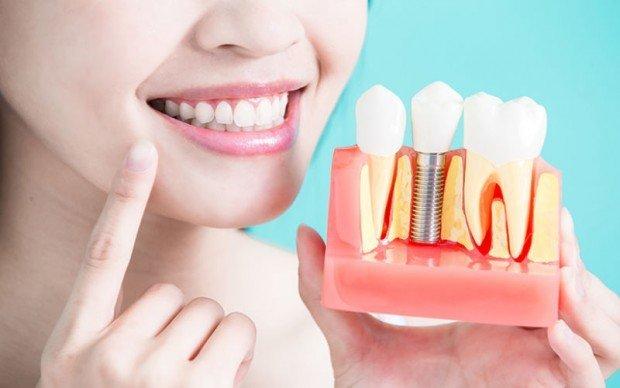 Имплантация зубов преимущества и особенности
