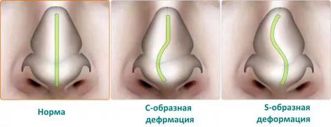 Искривление носовой перегородки: основные особенности патологии и лечение
