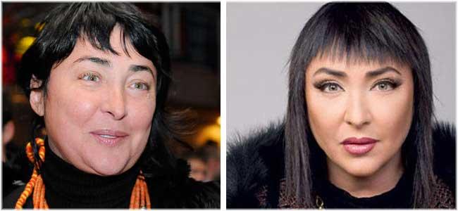 Певица валерия биография до и после пластики 146
